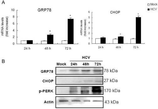 HCV infection induces ER stress in MIN6 cells.(A) mRNA levels of GRP78 and CHOP. MIN6 cells were mock-infected or infected with 1.0 MOI HCV for 24, 48, 72 h. mRNA was analyzed by real-time RT-PCR. The results were normalized with the values obtained from actin in the same sample. Data are expressed as fold-increase relative to the values observed in mock control. The measurements were done in triplicates. Data represent means + SD of three independent experiments (n = 9). *P<0.05, compared with respective controls. (B) Immunoblot analysis of GRP78, CHOP and p-PERK corresponding to (A) probed with the indicated antibodies. Amounts of actin were measured as an internal control to verify equivalent sample loading. Immunoblots are representative of at least three independent experiments.