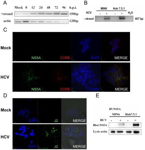 Hepatitis C virus replicates in MIN6 cells.(A) Kinetics of detection of positive-strand HCV RNA. MIN6 and Huh7.5.1 cells were mock-infected or infected with 1.0 MOI HCV. At different time points, cells were harvested and total RNA was isolated and reverse-transcribed to cDNA. Single-round PCR products (150 bp) were obtained by amplification with POSF/R primers. Actin was measured as an internal control. (B) Detection of the synthetic negative-strand RNA as in (A). The sample from HCV-infected Huh7.5.1 cells was used as the positive control. Negative controls included PCR amplification from non-infected cells (−) and water (H2O). (C–D) MIN6 cells were mock-infected or infected with 1.0 MOI of HCV at 24 hpi. HCV core (red) and NS5A (green) labeled with respective antibody (C) or HCV dsRNA labeled with J2 antibody (green) (D) were examined by immunofluorescence assay. Blue fluorescence represents DAPI-stained nuclei as observed. (E) Immunoprecipitation and blotting of NS5A purified from 96 h-infected MIN6 and Huh7.5.1 cells. Actin from lysis was used as the internal control. All measurements were done in triplicates. Immunoblots are representative of at least three independent experiments.