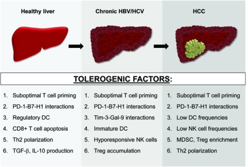 Figure 1. Evolving liver immunobiology during HCC development. Numerous tolerogenic factors, many of which are listed here, support immunoregulation in both the steady-state and diseased (chronically-infected or tumor-bearing) liver. These immunosuppressive mechanisms likely accumulate during HBV/HCV-mediated hepatocarcinogenesis and coexist in patients with advanced HCC lesions. See text for all associated references.