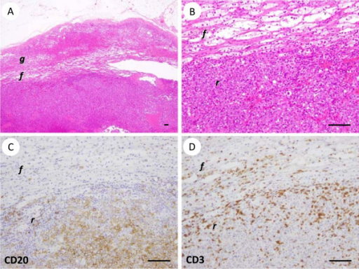 Representative pathological findings of primary adrenal diffuse large B-cell lymphoma (Case 1). The black lines in the lower right corner of each figure indicate 100 μm. (A, B) The results of hematoxylin and eosin staining. On low-power magnification (A), the lymphoma was located in the zona reticularis (represented by r) of the adrenal cortex. f and g represent the zona fasiculata and zona glomerulosa, respectively. High-power magnification (B) showed medium- to large-sized atypical lymphoid cells with dispersed chromatin. (C) Immunohistochemical staining for CD20 showed that the large lymphoma cells were positive for CD20. (D) Immunohistochemical staining for CD3 showed reactivity in small lymphocytes, but not in large lymphoma cells.