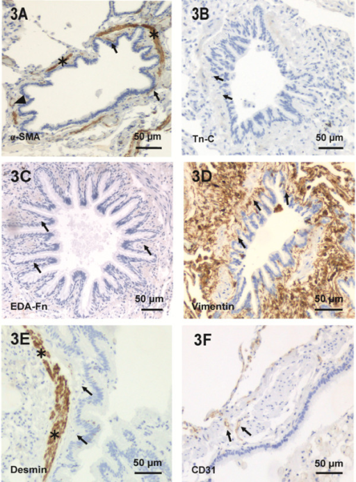 The Immunohistochemical Characterization Of Bronchioles Open I