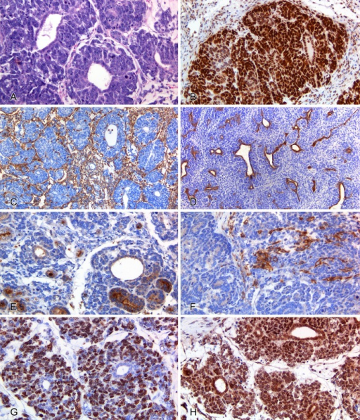 Kidney;biphasic nephroblastoma in a Trp53-mutant and prolyl isomerase1-deficient mouse. (A) The tumor is composed of neoplastic epithelial cells arranged insingle-layered tubules surrounded by neoplastic blastemal cells arranged in nests.Hematoxylin and eosin, 200×. (B) Both epithelial and blastemal cell populations arecharacterized by marked and diffuse nuclear immunoreactivity for Wilms' tumor antigen 1.Wilms' tumor antigen 1 immunohistochemistry (IHC), 200×. (C) Scant cytoplasmicimmunoreactivity for vimentin is observed in the stromal compartment separatingneoplastic cell populations. Vimentin IHC, 100×. (D) Neoplastic epithelial cells liningtubules diffusely express cytokeratin. Wide spectrum cytokeratin IHC, 100×. (E)Scattered tubules display FBP immunoreactivity, which is mainly concentrated along theluminal surface of neoplastic epithelial cells. FBP IHC, 200×. (F) Few scatteredneoplastic mesenchymal cells are diffusely positive for smooth muscle actin (SMA). SMAIHC, 200×. (G) A large number of Ki-67-positive neoplastic cells are evident in theblastemal compartment, whereas only scattered Ki-67-positive neoplastic epithelial cellsline the tubular structures. Ki-67 IHC, 200×. (H) Both epithelial and blastemal cellpopulations are characterized by marked and diffuse nuclear and cytoplasmicimmunoreactivity for β-catenin. β-catenin IHC, 200×.