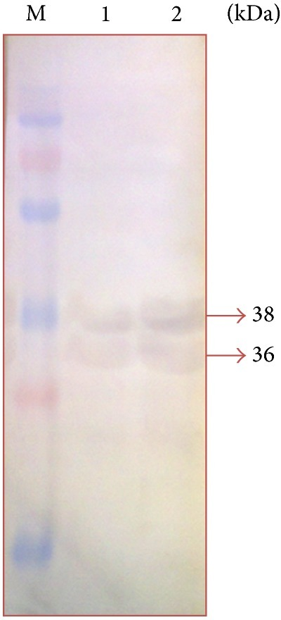 Immunodominant outer membrane proteins of Pasteurella multocida B:2 in apparently normal animal sera. Lane M: protein marker (250–15 kDa). Lane 1: immunodominant protein in normal condition. Lane 2: immunodominant proteins in iron-limited condition.