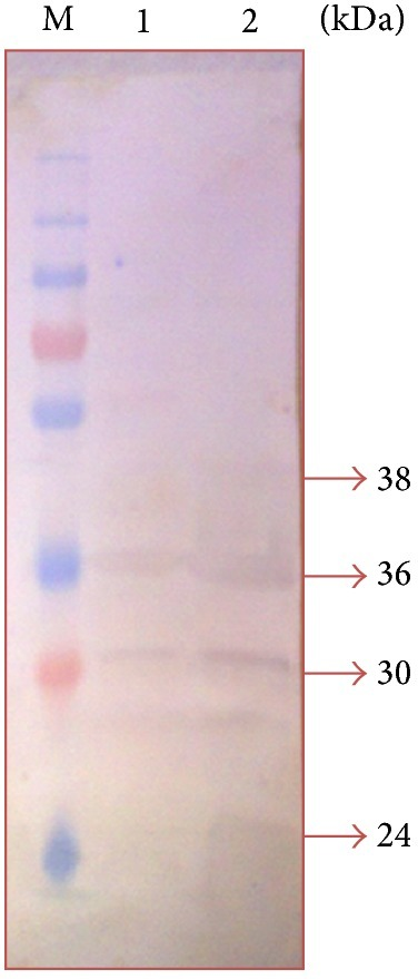 Immunodominant outer membrane proteins of Pasteurella multocida B:2 in field sera. Lane M: protein marker (250–10 kDa). Lane 1: immunodominant proteins in iron-limited condition. Lane 2: immunodominant protein in normal condition.