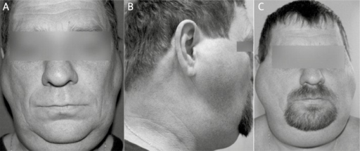A – Frontal view of the patient at time of first hospitalization with visible symmetrical fatty masses. B, C – Frontal and lateral view of the patient at follow-up visit after 1 year; increase in the primary fatty deposit