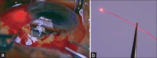 (a) Canaloplasty. Circumferential dilation of Schlemm's canal with the microcatheter; (b) note the blinking light of the Cather's tip (a)