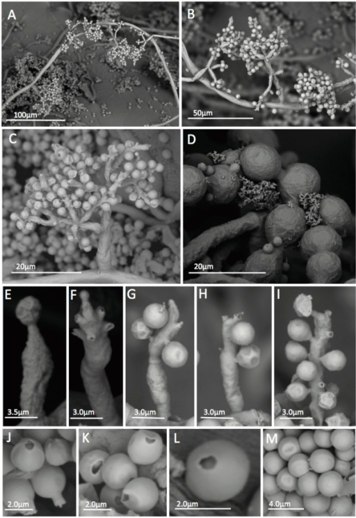 SEM of Escovopsis kreiselii CBS 139320 (= LESF53) showing morphological aspects.Slide cultures grown in PDA and SNA for five days at 25°C. A-B: Conidiophore growing patterns on the aerial mycelia; C: Conidiophore branching pattern; D: Chlamydospores; E-I: Percurrent conidiogenous cells showing conidia attached to the cells by denticles; J-M: Conidia. J: Conidia with attached denticle; K-L: Conidia without denticles and M: smooth walled conidia.
