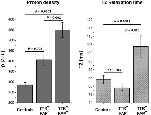 Signal quantification. Quantification of mean proton spin density (ρ) and T2 relaxation time (T2app) at thigh level, the site of predominant lesion focus plotted for each group. Differences in ρ (left) were highly significant between all three groups: manifest TTR-FAP versus asymptomatic gene carriers (P = 0.002); manifest TTR-FAP versus controls (P < 0.0001); asymptomatic gene carriers versus controls (P = 0.004). Significant differences were also found in T2app between manifest TTR-FAP and asymptomatic gene carriers (P = 0.003) and between manifest TTR-FAP and controls (P = 0.0011) but not between asymptomatic gene carriers and controls (P = 0.783), indicating that ρ has higher sensitivity in detecting early nerve injury, whereas T2app may better differentiate between increasing severity of clinical nerve impairment. TTR+-FAP+ = manifest/symptomatic TTR-FAP; TTR+-FAP− = asymptomatic gene carriers.