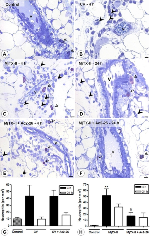 Effect of Ac2-26 treatment on the mesenteric inflammation induced by CV and MjTX-II.Intact mast cells (arrows) in the control mesentery (A). Inflamed mesentery of CV—(B) and MjTX-II-induced peritonitis (C-D) with extravasated neutrophils in the tissue (arrowheads) as observed at 4 and 24 h. Reduced neutrophil influx (arrowheads) after Ac2-26 post-treatment at 4 (E) and 24 h (F) of MjTX-II-induced peritonitis. Vessels (V). Stain: Toluidine blue. Scale bars: 10 μm. Quantitative analysis of extravasated neutrophils in the mesentery after CV- (G) and MjTX-II–induced peritonitis (H). The data represent the mean ± SEM of cell numbers/mm2 (n = 5 animals/group). **P < 0.01 vs control; §P < 0.05 vs MjTX-II-4 h.