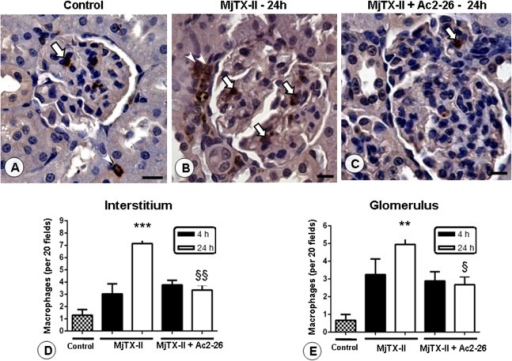 Presence of renal macrophages after MjTX-II-induced peritonitis.An increased number of cells was observed in the glomeruli (arrows) and interstice (arrowheads) of the juxtamedullary region 24 h after peritonitis induced by MjTX-II (B), compared to the control group (A). Ac2-26 peptide post-treatment prevented the macrophages influx in renal tissue (C). Scale bars: 20 μm. Counterstain: Hematoxylin. The data represent the mean ± SEM of the number of interstitial (D) and glomerular (E) macrophages per 20 fields in the renal tissue (n = 5 animals/group). **P < 0.01 and ***P < 0.001 vs control; §P < 0.05 and §§P < 0.01 vs MjTX-II 24 h.