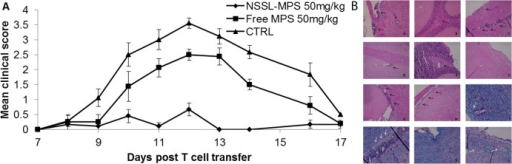 Comparison of the therapeutic efficacy of NSSL-MPS and free MPS in the adoptive transfer EAE mice model.(A) SJL mice were treated by IV injections on days 8, 10, 12 post-T cell transfer with saline (control) (▲), free MPS (50mg/kg) (■) or NSSL-MPS (50mg/kg) (◆). (B) Treatment with NSSL-MPS reduced inflammation and demyelination in brains and spinal cords of mice with AT-EAE compared with free MPS treated mice and control mice. Brains and spinal cords were obtained on day 13 post T- cell transfer. Black arrows indicate infiltrating inflammatory cells; white arrow indicates demyelination. Representative H&E-stained brains (A,B,D,E,G) and spinal cord (C,F,H) sections from control (A-C), as well as NSSL-MPS (D-F) and free MPS treated EAE mice (G-H) show extensive inflammation involving perivascular infiltrates of mononuclear leukocytes (arrows) within the cerebral parenchyma and spinal cords of CTRL mice and free MPS treated mice (arrows). In the NSSL-MPS treated group, much fewer infiltrating cells were observed. LFB staining demonstrates extensive demyelination in the control spinal cord (J) and a decrease in myelin density in the free MPS treated group (I,L) around blood vessels compared with NSSL-MPS treated mice (K), demonstrating densely organized myelin sheaths. Original magnification of x 40.