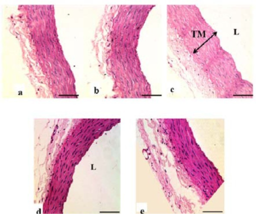 Photomicrograph showing transverse sections of the thoracic aorta under H&E staining. a(Ctrl), b(Ctrl-MC), c(DM-Ctrl), d(DM-MC), e(DM-Met). Note the relative thickness of the TM in c(DM-Ctrl) with double headed arrow. TM= Tunica Media, L= Lumen. LM X 200