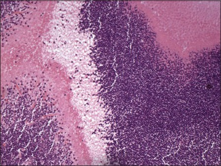Photomicrograph of the enucleated globe showing small undifferentiated cells with hyperchromatic nuclei and scanty cytoplasm (Hematoxylin and Eosin, ×200).