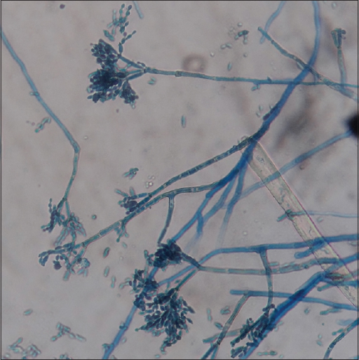 Lactophenol cotton blue mount of Fonsecaea pedrosoi showing thin septate hyphe and short chains of conidia