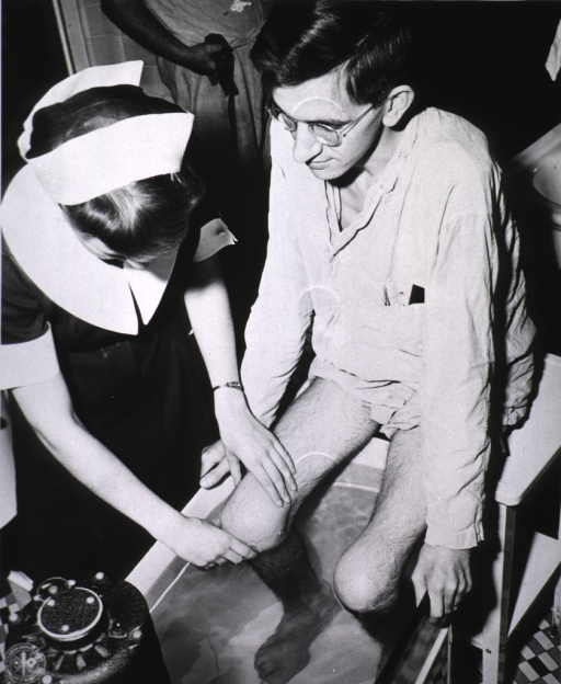 <p>Arthritis patient receiving whirlpool bath for affected lower limbs.</p>