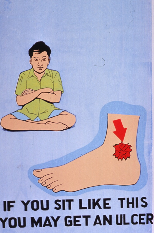<p>Predominantly light blue poster with black lettering.  Visual images are illustrations of a man sitting in a crossed-leg position and an ankle with a wound or ulcer.  Title at bottom of poster.</p>
