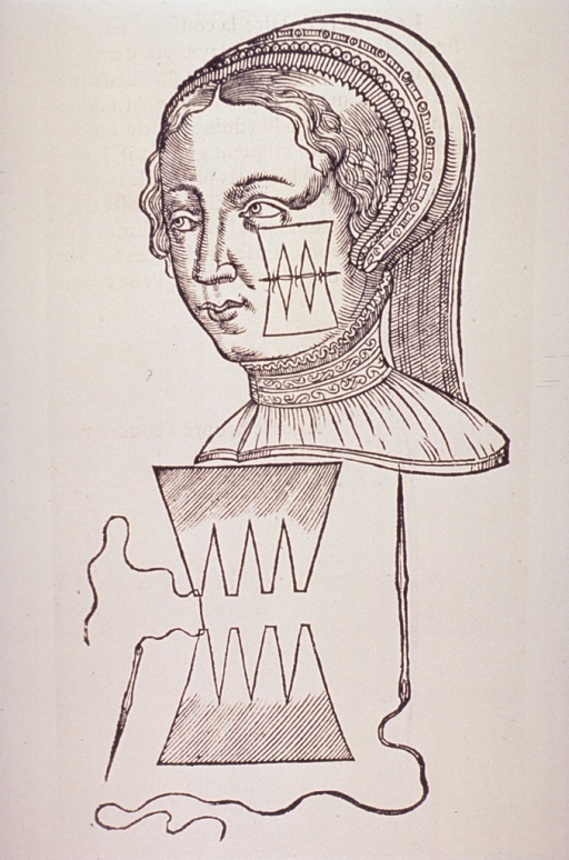 <p>Head of a woman with a facial wound; showing suture materials and technique.</p>