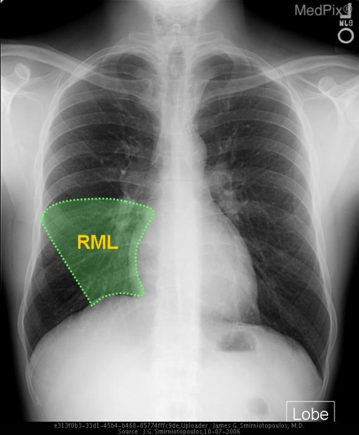 The location of the right middle lobe.  Notice how it extends from the horizontal (minor) fissure and overlays part of the Right heart border.