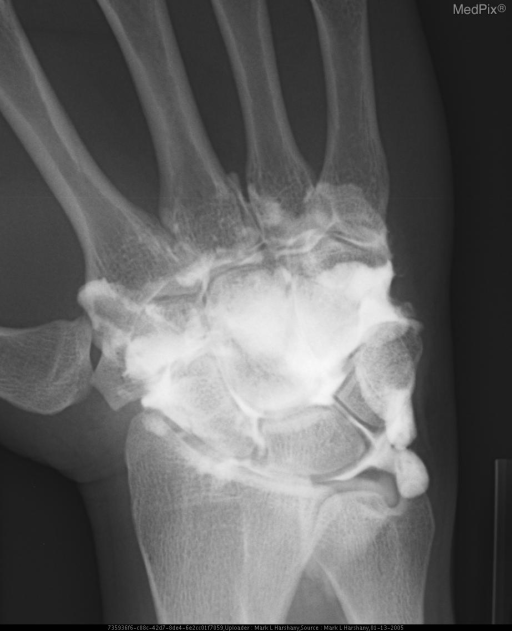 Late injection of midcarpal joint with contrast