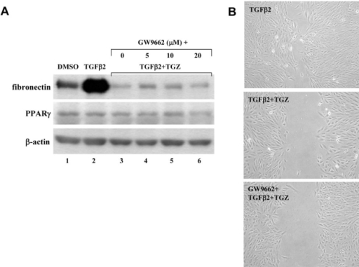The TGZ inhibition effect is independent to PPARγ activation. A: ARPE-19 cells were pretreated with different doses of GW9662 (5–20 μM, 2 h) before TGZ combing with TGFβ2 treatment for additional 48 h. Immunoblot results are from a representative experiment with β-actin as loading control. B: ARPE-19 cell monolayers were either treated with TGFβ2 or pretreated with 10 μM GW9662 before TGZ combing with TGFβ2 treatment and wounded with a P-200 pipette tip immediately. Wells were photographed at 48 h adjacent to a reference line scraped on the bottom of the plate.