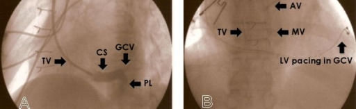 A (left side) - A 60 degree left anterior view showing coronary sinus venogram (coronary sinus, CS, posterolateral branch, PL, and anterior interventricular vein or great cardiac vein, GCV) and tricuspid valve, TV. B (right side) - An antero-posterior view showing distal course of the transvenous left ventricular, LV, pacing lead in the distal GCV; TV, mitral, MV, and aortic, AV, valves.