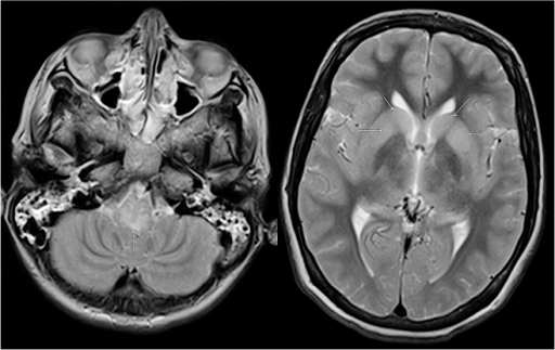 MRI brain on day 16 of admission (4 days before death).Axial T-2 weighted images in a patient with rabies due to Duvenhage virus infection, at day 17 after admission show increased signal in the posterior part of the medulla oblongata (arrow) and in the basal ganglia (arrows).