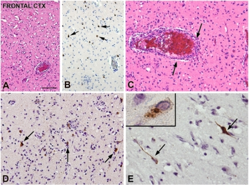 Histopathology rabies encephalitis due to Duvenhage virus.Rabies encephalitis (lyssavirus; genotype 4) brain pathology: cerebral cortex and anti-RNP Immunohistochemistry. (A) (HE staining): frontal cortex: extensive neuropil vacuolization and neuronal cell loss. (B) Few residual cortical neurons (arrows). (C) (HE staining): perivascular lymphocytic inflammatory infiltrates (arrows). (D and E) Anti-RNP immunoreactivity within the frontal cortex. Several neuronal cells show immunopositivity (arrows and insert in [E]) with multiple antigenic masses present in the neuronal cytoplasm, as well as in dendrites and axon. Scale bar: (A, B) 100 µm; (C, D) 60 µm; (E) 40 µm; insert in (E): 12 µm.