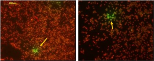Immunofluorescence tests with antirabies nucleocapside conjugate.Immunofluorescence of murine neuroblastoma cells using antirabies nucleocapside conjugate (Bio-Rad). The arrow points to cells with positive green immunofluorescence. The right picture is a magnification of the left with the scale bar.