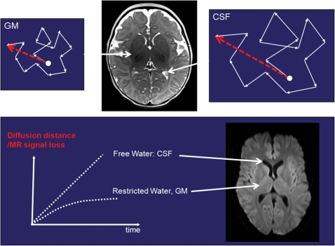 Graphical display of water molecules moving at different rates through the gray matter and cerebrospinal fluid (CSF). The effective distance that water molecules travel in gray matter is smaller than in CSF (represented by the magnitude of the red arrow). The difference in travelled diffusion distance versus time is displayed in the lower graph. The faster the molecules move, the more distance is travelled, the more signal loss will occur if diffusion gradients are applied. Consequently the signal loss in the CSF is higher (hypointense) compared with the signal loss in the gray matter (hyperintense relative to the CSF).