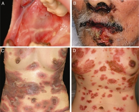 Clinical pictures of pemphigus patients. A. Oral erosions in a patient with pemphigus vulgaris. B. Heavily clotted and crusted lesions around the mouth in a patient with paraneoplastic pemphigus. C. Skin lesions found on the trunk in a patient with pemphigus vulgaris. D. Skin lesions on the trunk in a patient with pemphigus foliaceus.