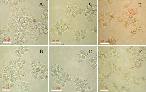 Optical microscopy images of leukemia cancer cells. a K562 cells, c K562 treated with DNR, e K562 treated with DNR conjugated with PLA/Au nanocomposites (DNR was 1 × 10-6 M in the above systems); b K562/AO2 cells, d K562/AO2 treated with DNR, f K562/AO2 treated with DNR conjugated with PLA/Au nanocomposites (DNR was 1 × 10-6 M in the above systems).