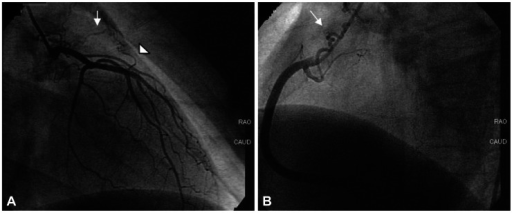 Coronary arteriovenous fistulas originating from both left and right coronary arteries. A: one fistula originated from the left main (arrow), and the other from the left anterior descending artery (arrowhead). B: fistula originating from the proximal right coronary artery (arrow).