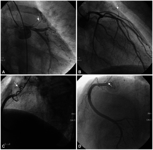 Follow-up coronary angiography at two years. A and B: follow-up left coronary angiogram shows no remarkable change in both fistulas. C: previous right coronary angiogram. D: follow-up right coronary angiogram showing that the previous fistula from the right coronary artery has spontaneously regressed.