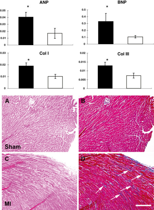 Molecular expression and histological changes in non-ischemic myocardium in sham and MI mice. Upper: The mRNA levels of ANP, BNP, and collagens type I and III in the non-ischemic myocardium of MI (n = 5) and sham (n = 5) groups by real-time RT-PCR to assess the molecular aspects of myocardial hypertrophy and fibrosis. ANP, BNP, and collagens type I and III were all significantly up-regulated in MI myocardium compared with sham myocardium. * p < 0.05 vs. sham. Lower: Myocardial fibrosis in the remote non-ischemic myocardium after MI. Histological assessment of remote non-ischemic myocardium with H&E (left column; A and C) and Masson's Trichrome staining (right column; B and D. Collagen stains as blue color) in sham (A, B) and MI (C, D) hearts. In MI hearts, there is an increase deposition of collagen in the interstitial space (arrows) in the remote non-ischemic myocardium suggesting the development of myocardial fibrosis. Magnification bar = 100 μm.