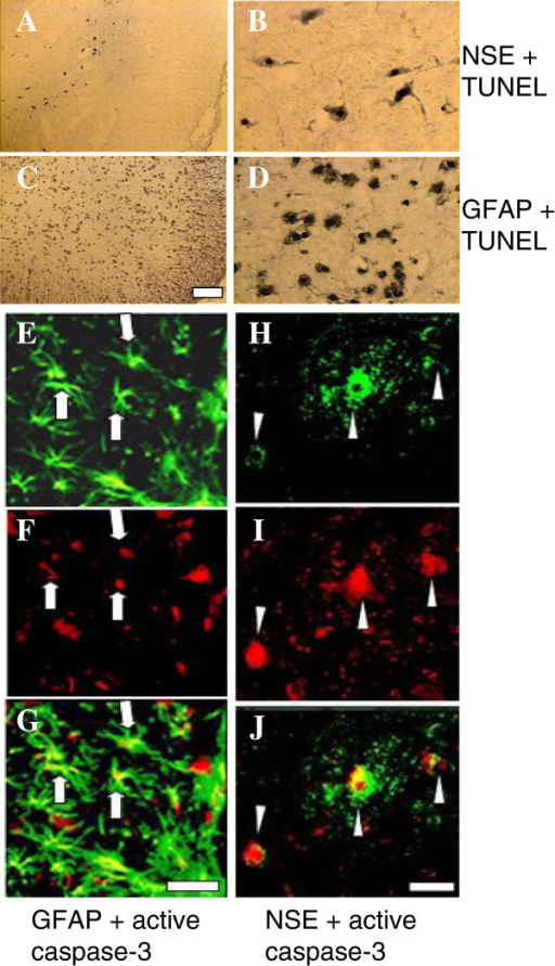 Photomicrographs of the morphological characterization of apoptotic neurons and astrocytes. A-D: photomicrographs of TUNEL and immunohistochemical double-stained sections 2 mm rostral from the epicenter in the ventral horn of injured spinal cords removed at 24 h post-SCI. A and B: TUNEL and NSE double-stained TUNEL-positive neurons at lower (A) and higher (B) magnifications. The arrowheads indicate TUNEL-positive nuclei in NSE-positive neurons. C and D: TUNEL and GFAP double-stained TUNEL-positive astrocyte at lower (C) and higher (D) magnifications. The arrows indicate TUNEL-positive nuclei in GFAP-positive astrocytes. E-J: photomicrographs of active caspase-3 and immuno-fluorescence double-stained sections 2.05 mm rostral from the epicenter in the ventral gray matter of injured spinal cords removed at 12 h post-SCI. E-G: p20 fragment and GFAP double-stained active caspase-3 with active astrocytes. E: active astrocytes (GFAP-positive, arrows); F: the same astrocytes stained for p20 (arrows). G: immuno-colocalization of E and F, showing caspase-3-positive astrocytes (arrows, yellow). H-J: p20 fragment and NSE double-stained neurons. H: NSE-positive neurons (arrowhead); I: the same neurons were also p20-positive (arrowhead). J: immuno-colocalization of H and I showing caspase-3-positive neurons (arrowhead, yellow). Scale bar = 100 μm.