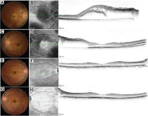 "Fundus photographs and spectral-domain optical coherence tomography (SD-OCT) before and after treatment.Notes: Images of both eyes of a 33-year-old woman with hypertensive retinopathy (A–D) before treatment and (E–H) 3 months after hypertensive treatment started. (A) Color photograph of the right eye shows retinal hemorrhage, ""cotton-wool"" spots, papilledema, and macular edema. (B) Horizontal line scan on SD-OCT of the right eye shows serous retinal detachment and hyperreflective foci, representing precursors of hard exudate in the retina. (C) Color photograph of the left eye shows retinal hemorrhage, cotton-wool spots, and papilledema, all of which are milder than those in the right eye. (D) Horizontal line scan on SD-OCT of the left eye shows serous retinal detachment and hyperreflective foci. (E and G) Fundus findings reveal favorable response to hypertensive treatment. (F and H) Horizontal line scans on SD-OCT of both eyes show complete disappearance of serous retinal detachment. The scale bar represents 200 μm. Green arrows represent the sectioned line of the SD-OCT."