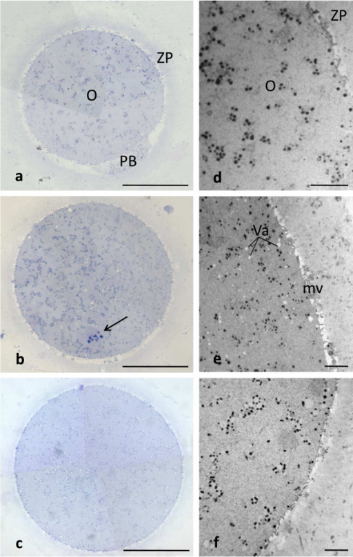 Human CO, SFO and VO at MII stage. Main characteristics. By LM (a-c) and TEM (d-f) no overt difference in shape, dimensions and organelle distribution is seen among CO (a,d), SFO (b,e) and VO (c,f). Note the intact ZP (a-c) and the presence of microvilli (mv) on the oolemma (d-f). Numerous vacuoles (Va) are seen in SFO (b,e). O: oocyte; PB: 1st PB; arrow: MII spindle with chromosomes. Bar is: 45 μm (a-c); 5 μm (d-f).
