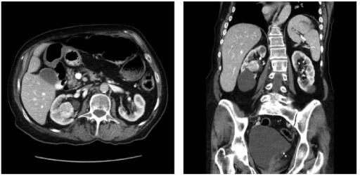 Axial and coronal infused CT imaging of patient 3.