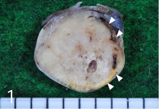 Gross findings. The cut surface revealed pale yellow, partially tan to brown or dark red areas, which corresponded to interstitial tumor cells (arrowheads). Some cystic cavities were also observed. Scale=5 mm.