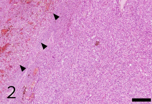 Histopathological findings of the tumor. The neoplasm consisted of diffuse proliferation of intimately admixed germ cell-like cells and Sertoli cell-like cells. Interstitial cell tumor (arrowheads) was compressed by MGSCT. Bar=200 µm.