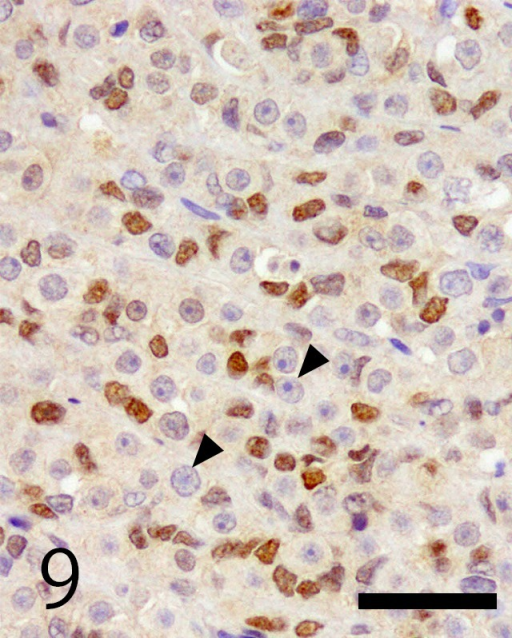 Immunohistochemistry of WT-1. Sertoli cells were nuclear positive for WT-1. Germ cells were negative for WT-1 (arrowheads). Bar=50 µm.