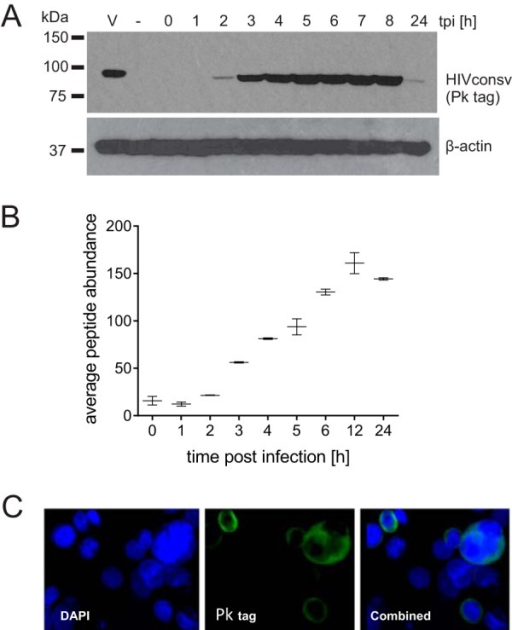 HIVconsv protein expression dynamics using MVA as a delivery vector. HIVconsv expression was monitored in cells infected with MVA.HIVconsv for the indicated durations by Western blotting using a V5 antibody (A), label-free quantitative LC-MS/MS (average abundance of 4 tryptic peptides) (B), and immunofluorescence at 24 hpi (C).