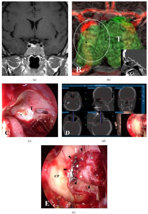 Preoperative image of a fusion model of 3D-CT and MRI and intraoperative endoscopic view in Case 1. (a) Preoperative coronal Gd-enhanced MRI in Case 1 showing a pituitary tumor with extensive invasion into the sphenoidal sinus. (b) Preoperative 3D-CT and MRI fusion model demonstrating that bilateral ICAs (C3 and C4 portions) are buried in the invasive tumor at the anterior plane of the sella (inset) (stars: C4; asterisks: C3). (c) Endoscopic view before tumor resection showing the massive tumor that widely protruded into the sphenoidal sinus. (d) A neuronavigation system demonstrating the locations of the ICAs and the destroyed sella in the endoscopic view (c). CT images on the navigation display show the position of the chip and trajectory of the flexible probe that was placed on the marked position (black arrow) on the endoscopic view (c). (e) Endoscopic view after resection of the tumor showing the widely eroded sellar floor occupied with residual intrasellar tumor and intact bony structures over the ICAs (arrowheads: eroded sellar floor; CP: ICA prominence). T: tumor; the area of white-dashed line: endoscopic view in (c).