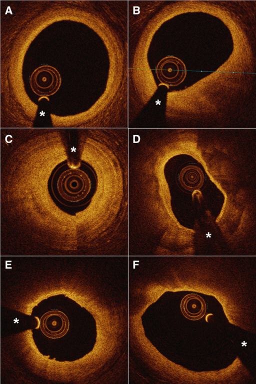 Plaque classification using optical coherence tomography. Optical coherence tomographic images illustrating both nonatherosclerotic vessel (A) and plaque (B), with evidence of focal intimal thickening and loss of layered vessel wall structure in (B). C–F, Further examples of fibrous plaque (C), fibrocalcific plaque (D), thick-cap fibroatheroma (E), and thin-cap fibroatheroma (F). Coronary guidewire artifact is denoted by * in all images.