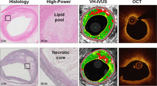 Examples of extracellular lipid accumulation and necrotic core correctly identified by intracoronary imaging. Examples of 2 plaques seen on histology that were correctly identified as containing extracellular lipid accumulations (top) and necrotic core (bottom) by both virtual-histology intravascular ultrasound (VH-IVUS) and optical coherence tomography (OCT). High power images (×20) are sampled from areas outlined in low power images (×2).
