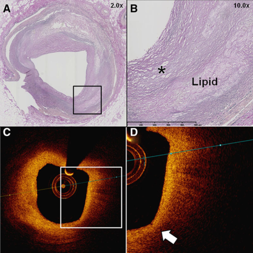 Example of plaque incorrectly classified as optical coherence tomography thin-cap fibroatheroma (OCT-TCFA). A–D, Histological image of a fibroatheroma (A) displaying evidence of extracellular lipid accumulation (B) and thick (>65 μm) overlying fibrous cap (*) with coregistered OCT image (C). The OCT displays a signal-poor region with poorly delineated borders (D) correctly identifying lipid, but the minimal fibrous cap thickness (measured at arrow) was <85 μm, resulting in classification as OCT-TCFA.