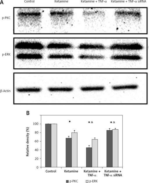 TNF-α regulated PKC-ERK signaling pathway during ketamine-induced neurotoxicity in vitro. A – Western blotting analysis of the protein expression levels of phosphorylated PKC (p-PKC) and phosphorylated ERK (p-ERK) for the organotypic hippocampal slice cultures that were treated with control medium, ketamine only, ketamine + TNF-α, or ketamine + TNF-α siRNA. B – Semi-quantitative measurements of the protein densities when hippocampal cultures were treated with control medium, ketamine only, ketamine + TNF-α, or ketamine + TNF-α siRNA. *P < 0.05, as compared to control, ▵p < 0.05, as compared to ketamine treatment (n = 3)