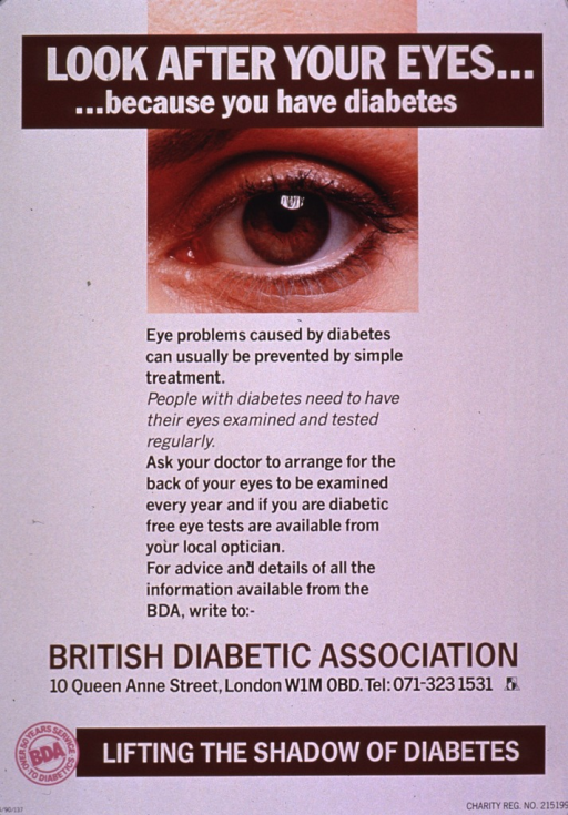 <p>Predominantly white poster with multicolor lettering.  Title at top of poster.  Visual image is a color photo reproduction featuring a close-up shot of an eye.  Text below photo explains eye problems encountered by diabetics and encourages regular eye exams.  Publisher information and note at bottom of poster.</p>