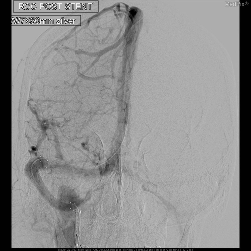 Neurointerventional radiology endovascular procedure had successful balloon angioplasty and stent placement across the right transverse sinus.