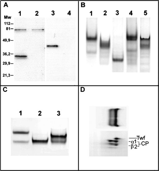 Twinfilin interacts with capping protein. (A) Immunoprecipitation of twinfilin with anti-yeast twinfilin antibody was carried out from wild-type (lane 1) and Δtwf1 (lane 2) yeast extracts. The blot detected with an anti-Cap2p antibody shows coimmunoprecipitation of Cap2p (MW ∼33 kD) with twinfilin from wild-type yeast extract. Immunoprecipitation of Cap2p was carried out with anti-Cap2p antibody from wild-type (lane 3) and Δcap1,ΔCap2 (lane 4) strains. The blot detected with an anti-Twf1p antibody shows specific coimmunoprecipitation of twinfilin (MW ∼40 kD) with capping protein. The ∼80-kD band seen in lanes 1 and 2 is a protein that binds unspecifically to protein A-Sepharose beads and cross-reacts with the Cap2p antiserum. (B) The interaction between yeast twinfilin and yeast capping protein was also investigated by native gel electrophoresis. Lane 1, 10 μM twinfilin; lane 2, 10 μM Twf1-3p; lane 3, 5 μM Cap1/2p; lane 4, 10 μM twinfilin + 5 μM Cap1/2p; lane 5, 10 μM Twf1-3p + 5 μM Cap1/2p. The shift in mobility of Cap1/2p in the presence of twinfilin or Twf1-3p indicates a complex formation. (C) Interaction of mouse twinfilin and mouse α1β2 capping protein. Lane 1, 3 μM twinfilin; lane 2, 3 μM capping protein; lane 3, 3 μM twinfilin + 3 μM capping protein. (D) Analysis in a second dimension on a 12% SDS–polyacrylamide gel of the protein components from B (lane 3) shows the presence of twinfilin and both subunits (α1 and β2) of capping protein in the shifted band.